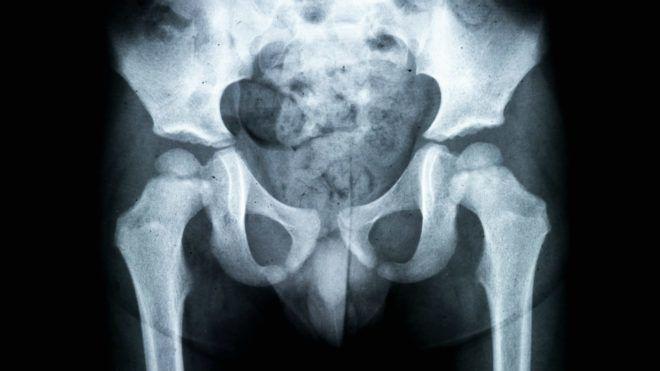 Nyíltan írta le egy orvos, milyen bizarr tárgyakat kellett már eltávolítania a páciensei hátsójából